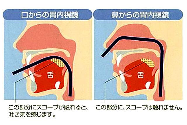 胃カメラ経路