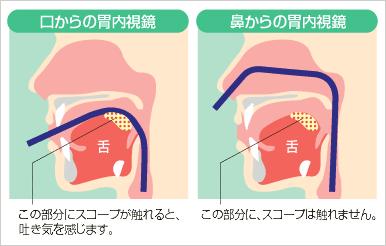 「鼻から」と「口から鎮静剤あり」